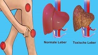 Diese 6 Warnsignale zeigen, dass deine Leber voller Gift ist!