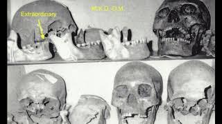 The Legendary Red-Haired Giants of Lovelock Cave and North America