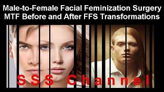 Before/After Male-to-Female Transgender Transformations Facial Feminization Surgery