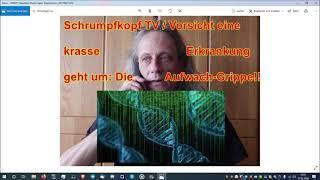 Trailer: Schrumpfkopf TV / Grippe-Aufwachvirus im Umlauf — komm, lasss Dich doch anstecken davon ...