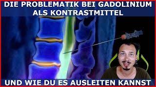 GADOLINIUM als KONTRASTMITTEL muss ausgeleitet werden! Das Schwermetall in deinem Körper