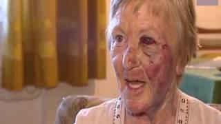Bosnier schlagen 78-jähriger Oma über 50 Mal das Gesicht grün und blau