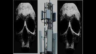 5G Strahlung 10 x stärker als  2G, 3G und 4G! Beweisvideo!
