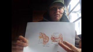 Elektronische Folter besiegen 40: Gehörgang säubern