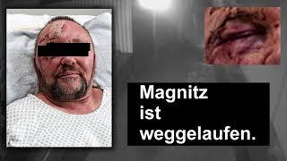 Blaues Auge vom hinfallen? (Magnitz/Relotiussystem)