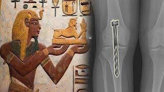 Die alten Ägypther / Paraonen war sehr fortschrittlich